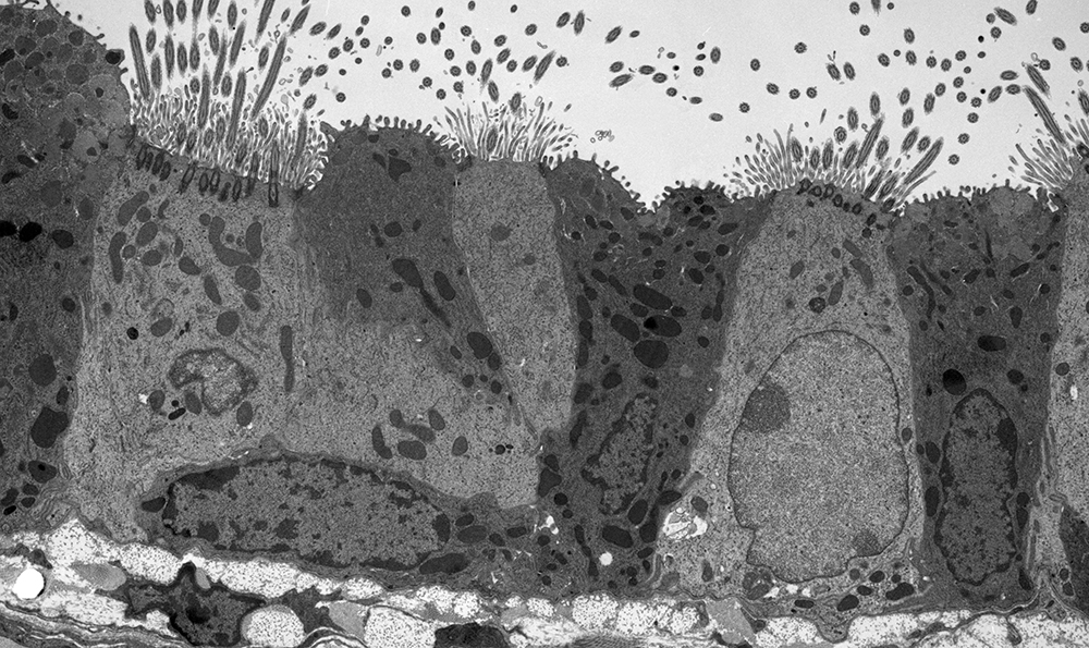 A thin section cut through the bronchiolar epithelium of a mouse lung, which consists of ciliated cells and non-ciliated cells.